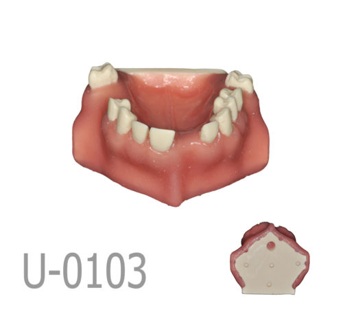 1 2 500x457 - U-0103 Maxillary model with bone defects and healed ridges in three areas with soft tissue.