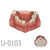 1 3 100x100 - U-0104: Modelo maxilar con un alvéolo, una cresta cicatrizada y hueso cortical y esponjoso.