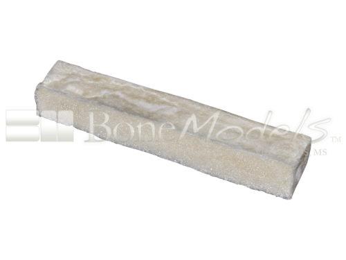 Bones Bs