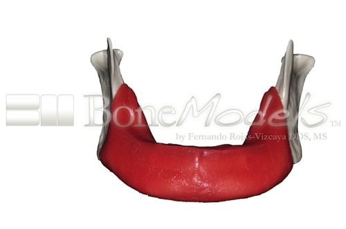 BondeModels L003A 01 500x332 - L-003A: Severely reabsorbed edentulous mandible with soft tissue. Real Human Size.
