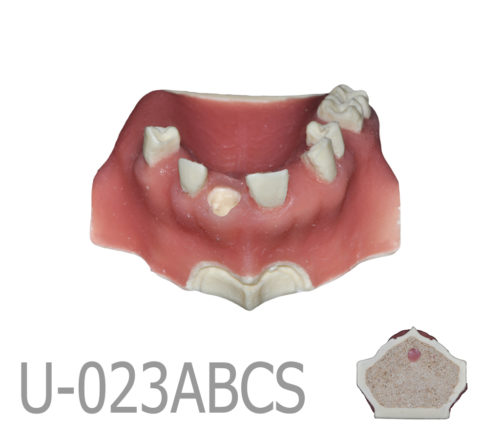 BondeModels U023abcs 01 4 500x438 - U-023ABCS Partially edentulous maxilla with cortical and cancellous bone and extra bone to apply the 3A-2B rule.