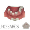 BondeModels U023abcs 01 5 100x100 - U-0103 Modelo maxilar con defectos óseos y crestas cicatrizadas en tres zonas con encía.