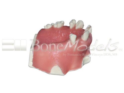 BondeModels U023abcs 02 500x375 - U-023ABCS Partially edentulous maxilla with cortical and cancellous bone and extra bone to apply the 3A-2B rule.