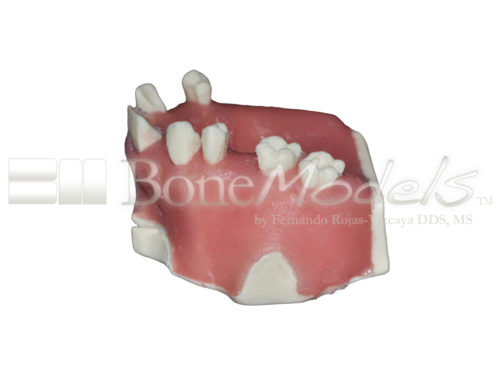BondeModels U023abcs 03 500x375 - U-023ABCS Partially edentulous maxilla with cortical and cancellous bone and extra bone to apply the 3A-2B rule.