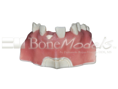 BondeModels U023abcs 04 500x375 - U-023ABCS Partially edentulous maxilla with cortical and cancellous bone and extra bone to apply the 3A-2B rule.