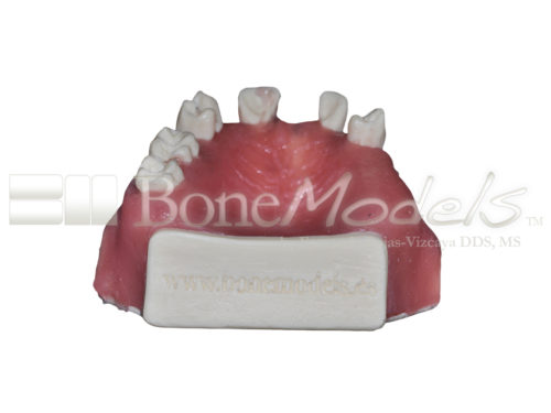 BondeModels U023abcs 05 500x375 - U-023ABCS Partially edentulous maxilla with cortical and cancellous bone and extra bone to apply the 3A-2B rule.