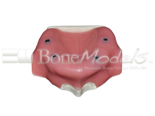 BondeModels U037B 01 1 500x375 - U-037B Edentulous maxilla with 4 implant defects ideal for working peri-implantitis and implants at the soft tissue level with calculus