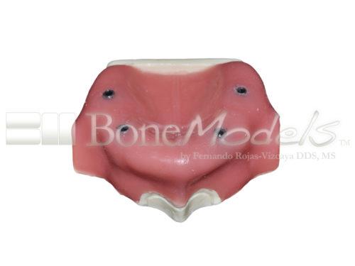 BondeModels U037B 01 3 500x375 - U-037B Modelo maxilar desdentado con cuatro defectos de implantes. Ideal para trabajar la periimplantitis e implantes con cálculos a nivel de encía.