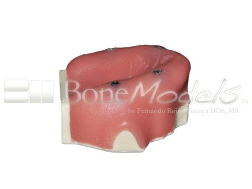 BondeModels U037B 02 1 500x375 - U-037B Modelo maxilar desdentado con cuatro defectos de implantes. Ideal para trabajar la periimplantitis e implantes con cálculos a nivel de encía.