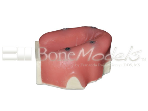 BondeModels U037B 02 500x375 - U-037B Edentulous maxilla with 4 implant defects ideal for working peri-implantitis and implants at the soft tissue level with calculus