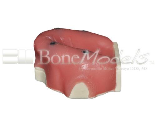 BondeModels U037B 03 1 500x375 - U-037B Modelo maxilar desdentado con cuatro defectos de implantes. Ideal para trabajar la periimplantitis e implantes con cálculos a nivel de encía.