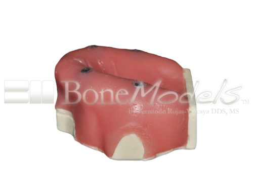 BondeModels U037B 03 500x375 - U-037B Edentulous maxilla with 4 implant defects ideal for working peri-implantitis and implants at the soft tissue level with calculus