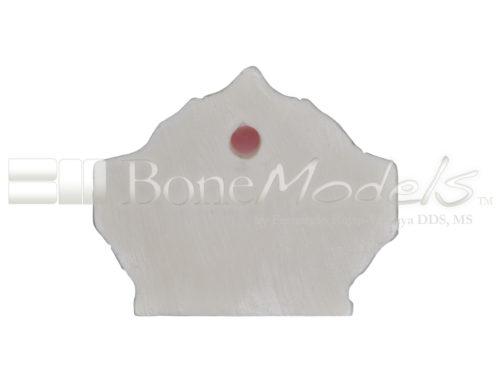 BondeModels U037B 05 500x375 - U-037B Modelo maxilar desdentado con cuatro defectos de implantes. Ideal para trabajar la periimplantitis e implantes con cálculos a nivel de encía.