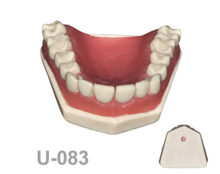 BondeModels U083 220x174 - U-083: Maxillary model with fixed teeth and diastemas with soft tissue.