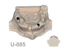 BondeModels U085 220x174 - U-085: Partially edentulous maxilla with 2 implants with defects, three bone defects and one socket with dehiscence.