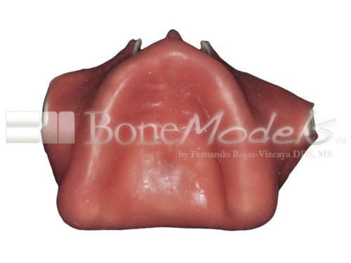 BondeModels U086 07 500x375 - U-086: Modelo maxilar desdentado. Recrea un paciente real con encía, crestas cicatrizadas y senos.