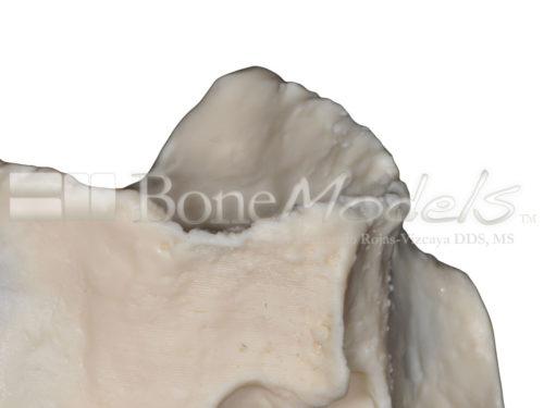 BondeModels U086 09 500x375 - U-086: Modelo maxilar desdentado. Recrea un paciente real con encía, crestas cicatrizadas y senos.