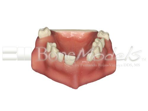 BondeModels U103 01 1 500x375 - U-0103 Modelo maxilar con defectos óseos y crestas cicatrizadas en tres zonas con encía.