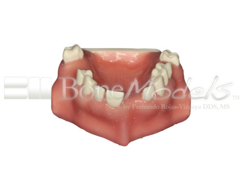 BondeModels U103 01 500x375 - U-0103 Maxillary model with bone defects and healed ridges in three areas with soft tissue.