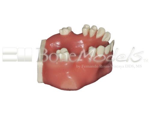 BondeModels U103 02 1 500x375 - U-0103 Modelo maxilar con defectos óseos y crestas cicatrizadas en tres zonas con encía.