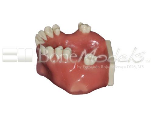 BondeModels U103 03 1 500x375 - U-0103 Modelo maxilar con defectos óseos y crestas cicatrizadas en tres zonas con encía.