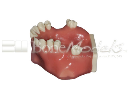 BondeModels U103 03 500x375 - U-0103 Maxillary model with bone defects and healed ridges in three areas with soft tissue.