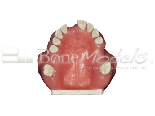 BondeModels U103 04 1 500x375 - U-0103 Modelo maxilar con defectos óseos y crestas cicatrizadas en tres zonas con encía.