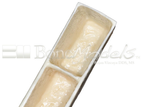 BoneModels BS003A 04 1 500x375 - BS-003A: Bone stick with 4 sinus.