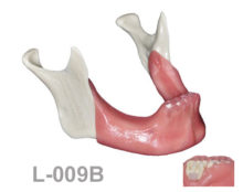 BoneModels L009B 1 220x174 - L-009B: Edentulous mandible after extractions and posterior atrophy with soft tissue and cyst.