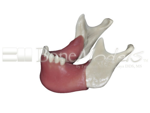 BoneModels L026A 04 500x375 - L-026A: Partially edentulous mandible with soft tissue, thin right ridge and thick left ridge.