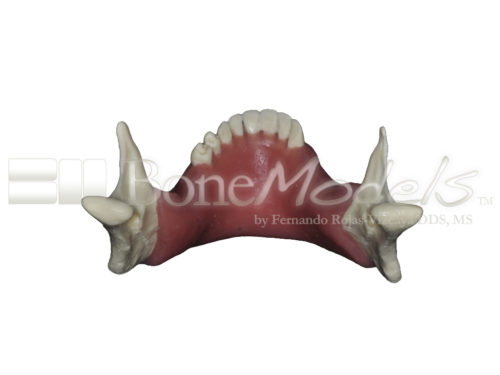 BoneModels L026A 07 500x375 - L-026A: Partially edentulous mandible with soft tissue, thin right ridge and thick left ridge.