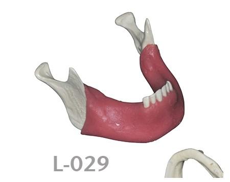 L-029: Mandíbula parcialmente desdentada con hueso cortical y ...