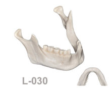 BoneModels L030 1 220x174 - L-030: Partially edentulous mandible ideal for horizontal anterior bone graft augmentation.