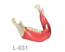 BoneModels L031 220x174 - L-031: Partially edentulous mandible with soft tissue ideal for horizontal anterior bone graft augmentation.
