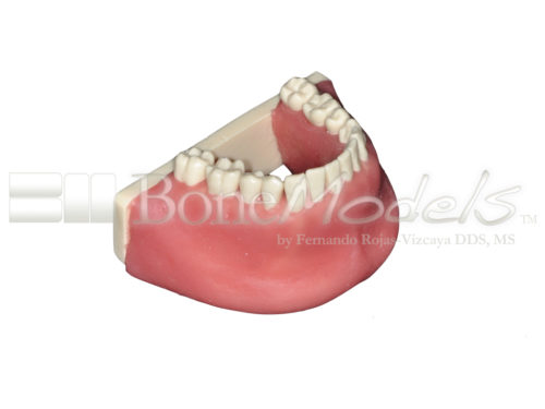 BoneModels L034A 03 1 500x375 - L-034A: Mandible with all removable teeth with soft tissue.