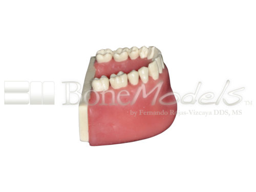 BoneModels L034A 04 1 500x375 - L-034A: Mandible with all removable teeth with soft tissue.