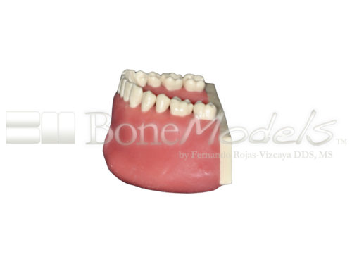 BoneModels L034A 05 1 500x375 - L-034A: Mandible with all removable teeth with soft tissue.