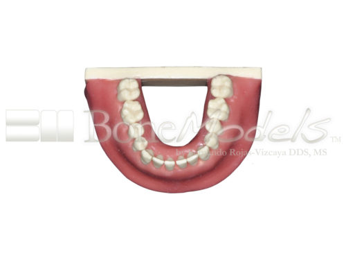 BoneModels L034A 08 1 500x375 - L-034A: Mandible with all removable teeth with soft tissue.