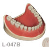 BoneModels L047B 1 100x100 - L-048: Partially edentulous mandible with healed ridges and sockets without soft tissue.