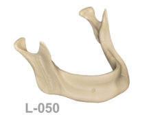 BoneModels L050 1 220x174 - L-050: Edentulous mandible with horizontal bone resorption and without vertical bone loss.