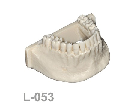 L-053: Mandíbula con todos los dientes fijos, sin encía y con ...