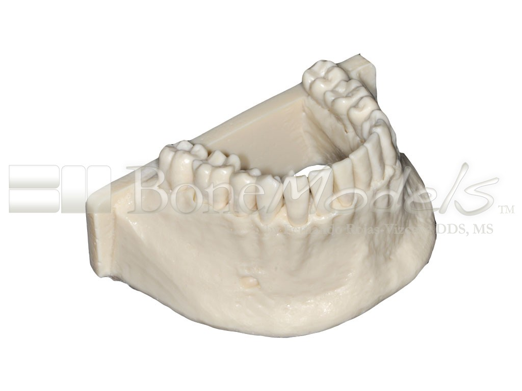 L 053 Mandible With Fixed Teeth Without Soft Tissue And Periosteum