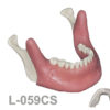 BoneModels L059CS 1 100x100 - L-060: Partially edentulous mandible with cortical and cancellous bone with two fenestrations.