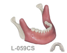 BoneModels L059CS 1 220x174 - L-059CS: Mandibular model with some impacted teeth with cortical and cancellous bone with soft tissue.
