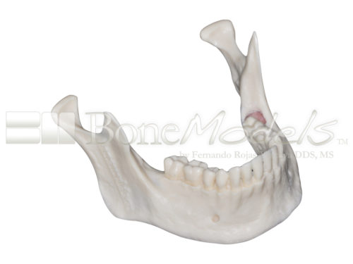 BoneModels L059CS 01 1 500x375 - L-059CS: Mandibular model with some impacted teeth with cortical and cancellous bone with soft tissue.