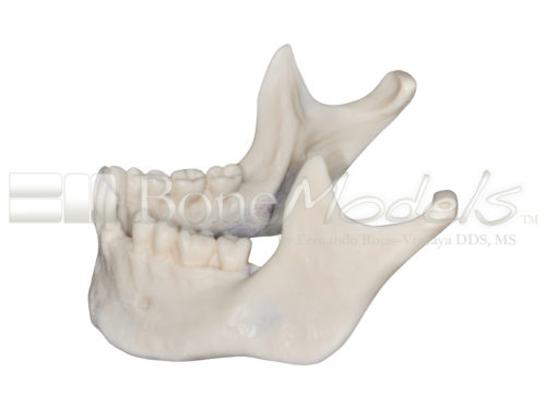 BoneModels L059CS 04 1 500x375 - L-059CS: Mandibular model with some impacted teeth with cortical and cancellous bone with soft tissue.