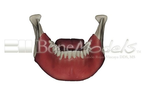 BoneModels L062 01 500x332 - L-068A: Mandible with fixed teeth and soft tissue with tongue.