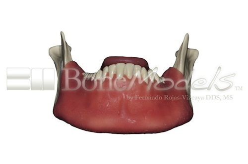 BoneModels L062 02 500x332 - L-068A: Mandible with fixed teeth and soft tissue with tongue.