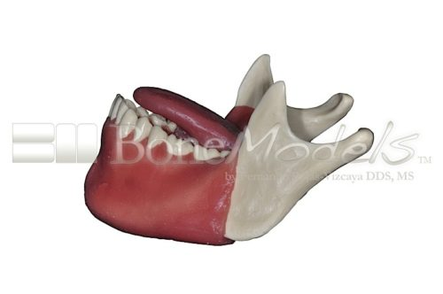 BoneModels L062 04 500x332 - L-068A: Mandible with fixed teeth and soft tissue with tongue.