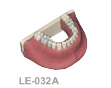 BoneModels LE032A 1 220x174 - LE-032A: Mandible with root canal in five teeth, periapical lesions, cyst and ligament.